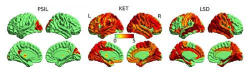 Activitatea cerebrală sub influența substanțelor psihedelice
