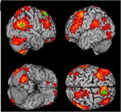 Modele de regiuni cerebrale specifice depresiei