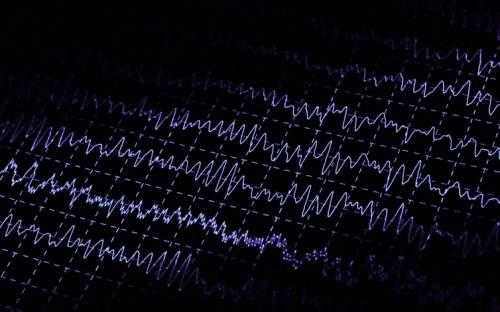 Activitatea cerebrală evidențiată de electroencefalograma