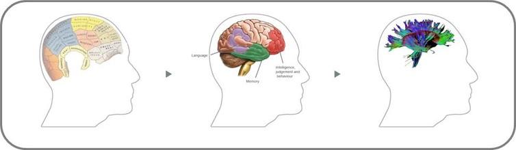 Modele de conexiuni structurale în creierul uman