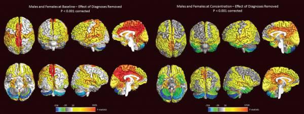 Creierul femeilor este mai activ decat al bărbaților
