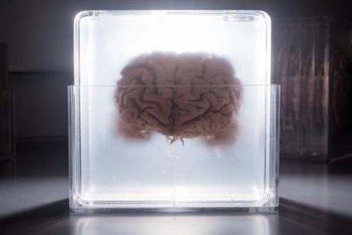 Un creier într-o cuvă