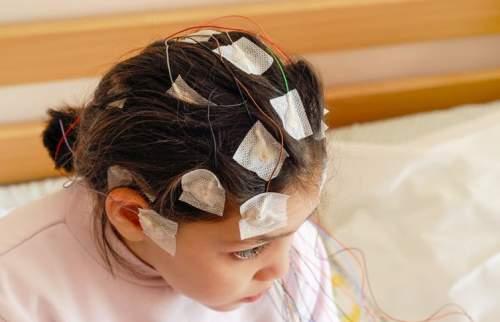 Electrozi externi care înregistrează activitatea creierului