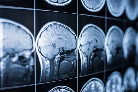 Activitatea cerebrală și experiențele din apropierea morții