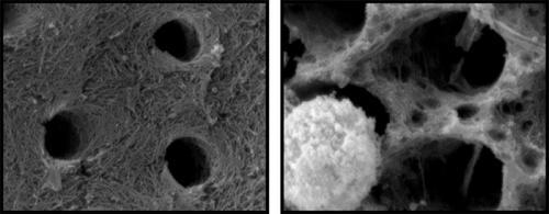 Daune dentare produse de neutrofile