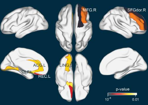 Efectul ceaiului asupra creierului