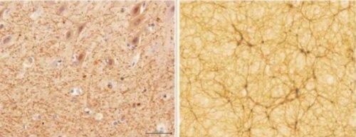 Comparație cerebel-rețea cosmică