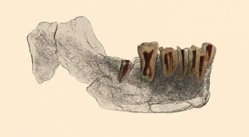 Imagistica mandibulei și a dinților Nesher Ramla.